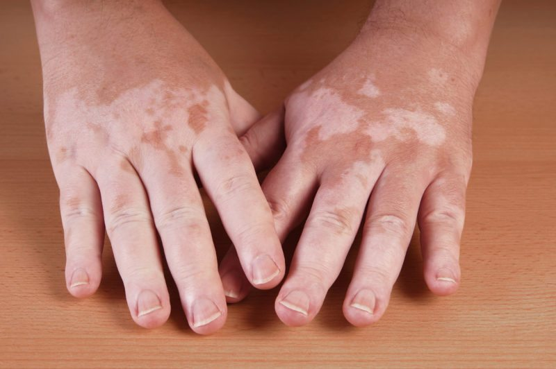 Do genetics cause vitiligo?